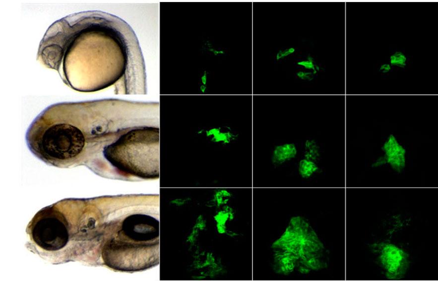 model-human-glioma-in-zebrafish